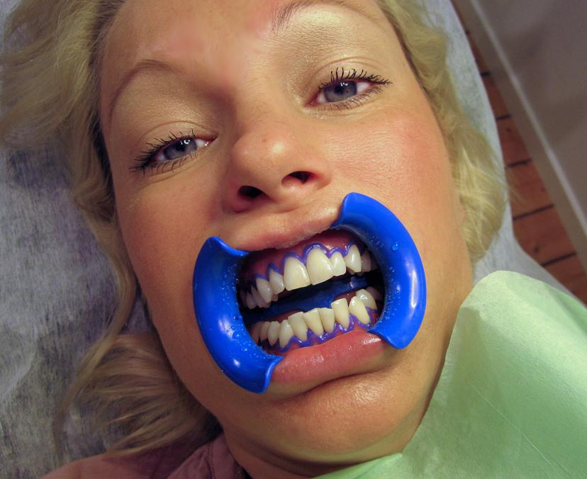 hur mycket kostar det att bleka tänderna