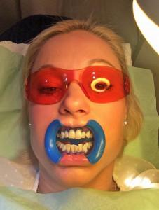 tandblekning-alexiskliniken