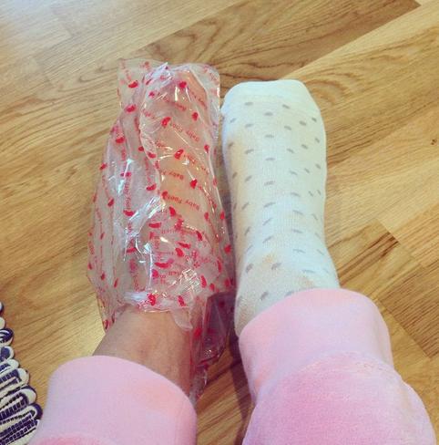 babyfoot-behandling