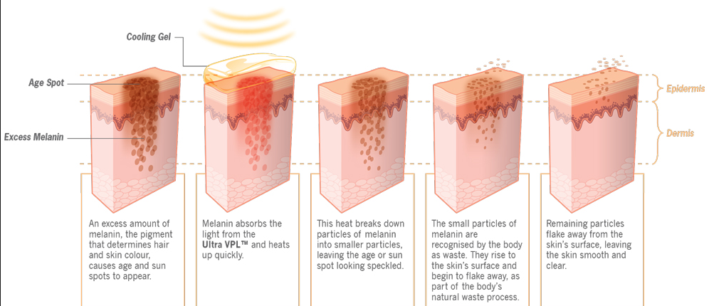 sa-fungerar-ipl-behandling-mot-pigmentflackar