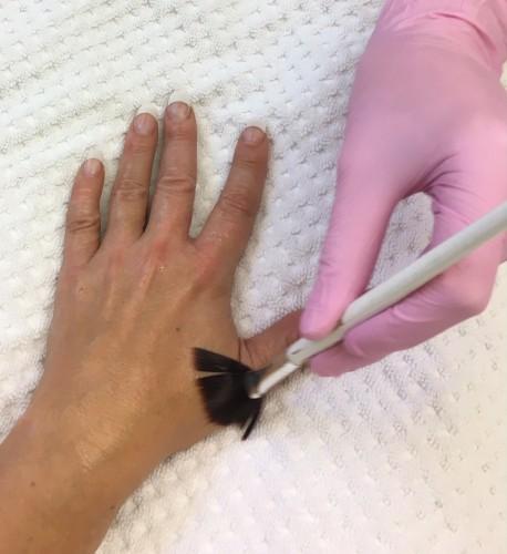 eksem-hud-microneedle