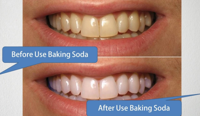 vitare tänder bakpulver